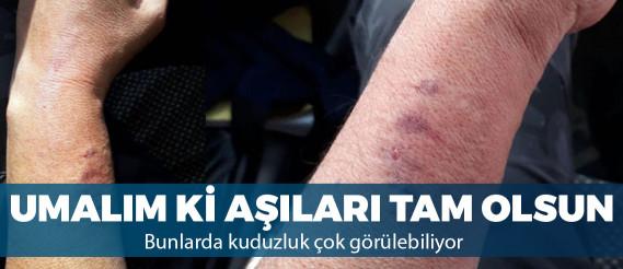 HDP'li vekil, kadın polisin kolunu ısırdı